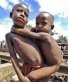 pg-2-malnutrition-afp-getty.jpg